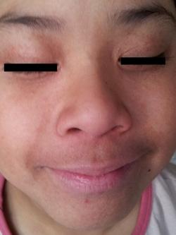 アトピー少女 ウィートグラス療法回復例