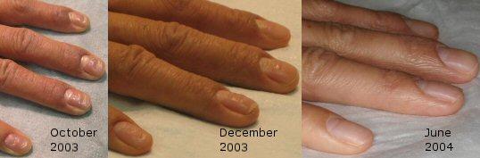 アトピー爪 ウィートグラス治療経過回復例