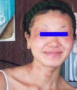 アトピー性皮膚炎 女性 ウィートグラス治療経過例