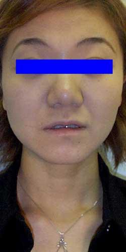 アトピー性皮膚炎 女性 ウィートグラス治療回復例