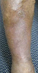 足潰瘍ウィートグラス療法回復症例