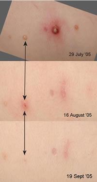 水いぼ 皮膚 ウィートグラス療法回復経過例