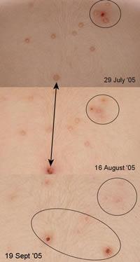 水いぼ 皮膚 ウィートグラス療法経過例 拡大写真