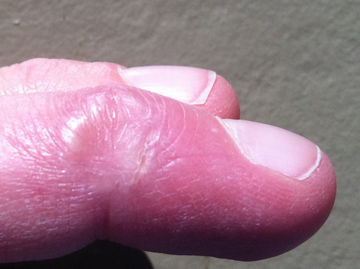 指 皮膚移植後ウィートグラス療法回復症例