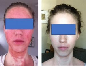 女性 アトピーからステロイド依存後ウィートグラス療法回復経過例