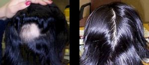 円形脱毛症 ウィートグラス療法の経過