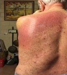 放射線治療後背中皮膚炎症