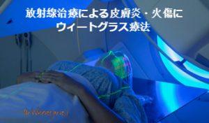 放射線治療患者