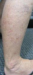 帯状疱疹 ウィートグラス使用後 足