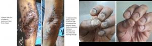 乾癬ウィートグラス治療経過例