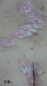 乾癬ウィートグラス治療開始例