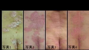 乾癬ウィートグラス治療経過症例