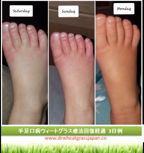 手足口病 ウィートグラス療法回復経過例 足